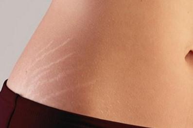cicatrices y estrías