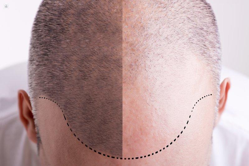 Implantología capilar